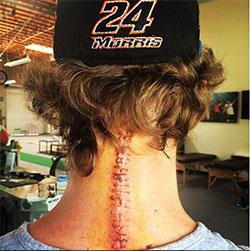 Bradley Morris neck injury surgery